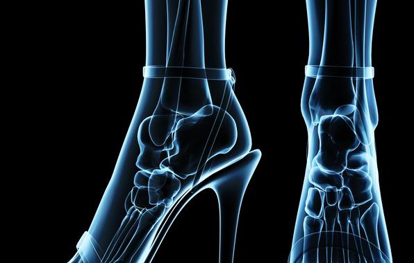Picture pose, bones, heels